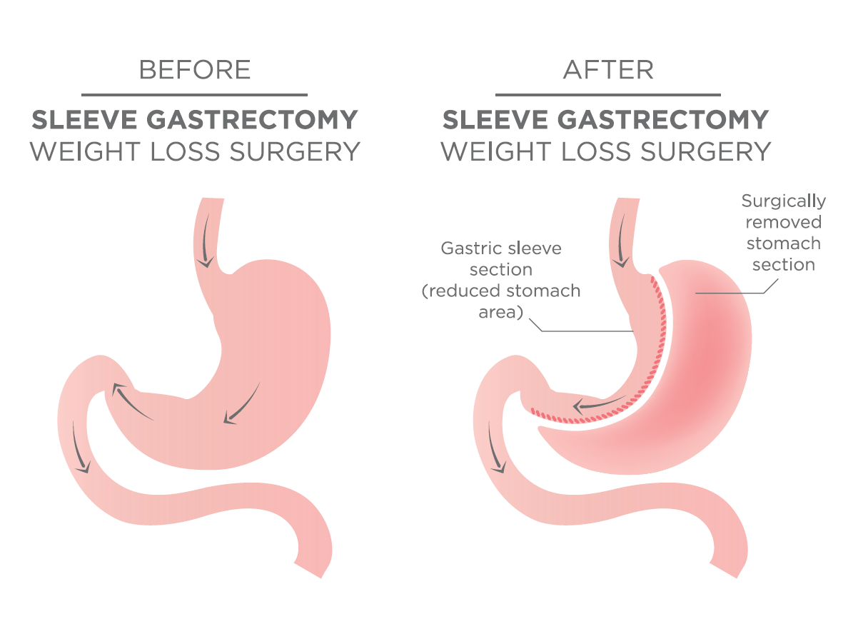 gastric bypass vs sleeve When it comes to weight loss surgery, patients often wonder what the difference is between liposuction and bariatric procedures, such as gastric sleeve, gastric bypass or lap-band® surgery.